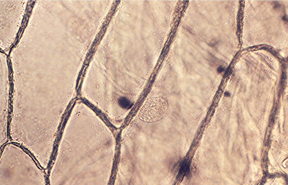 onion epidermis Our objective our aim is to prepare stained temporary mounts of onion peel and human cheek cells and to record the observations the theory before exploring the details of cell structure, let's understand the differences in the structure of an onion cell and a human cheek cell.