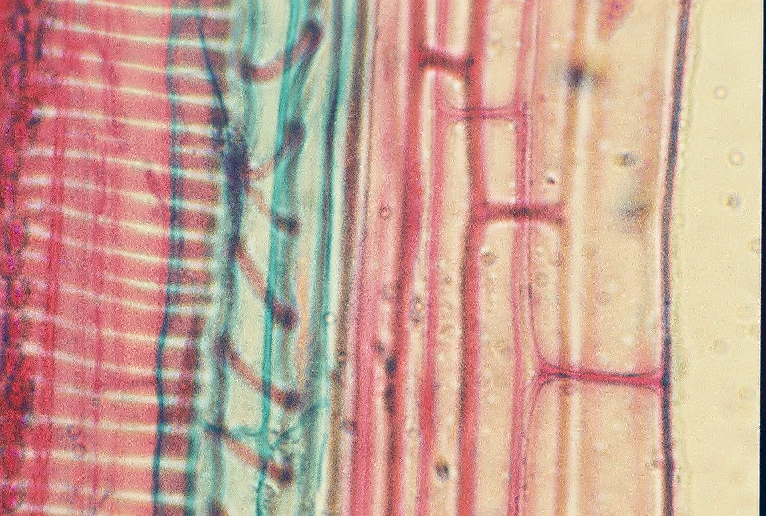 Xylem Cell Microscope Botany Pictures